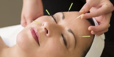 Agopuntura, che cos'è e quali sono i suoi benefici